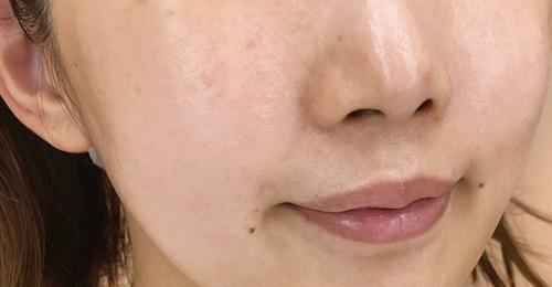 マキアレイベル・薬用クリアエステヴェールを使う前の素肌