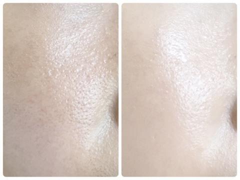 マキアレイベル・薬用クリアエステヴェールの毛穴のカバー力検証